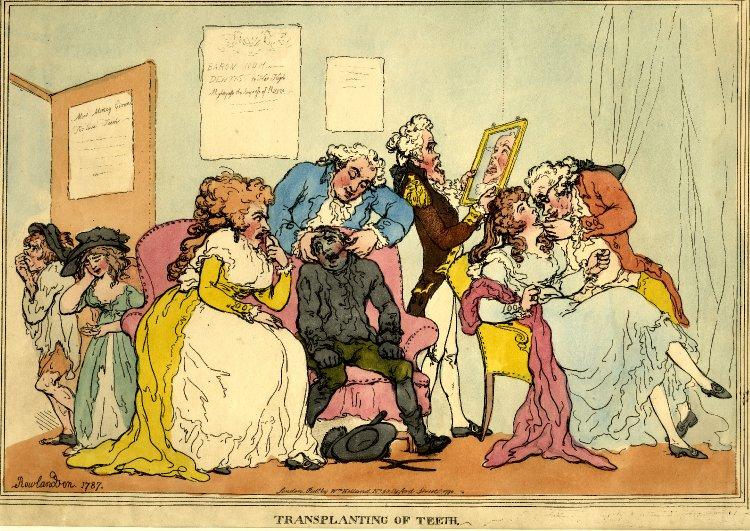 Transplanting of Teeth by Thos Rowlandson 1787