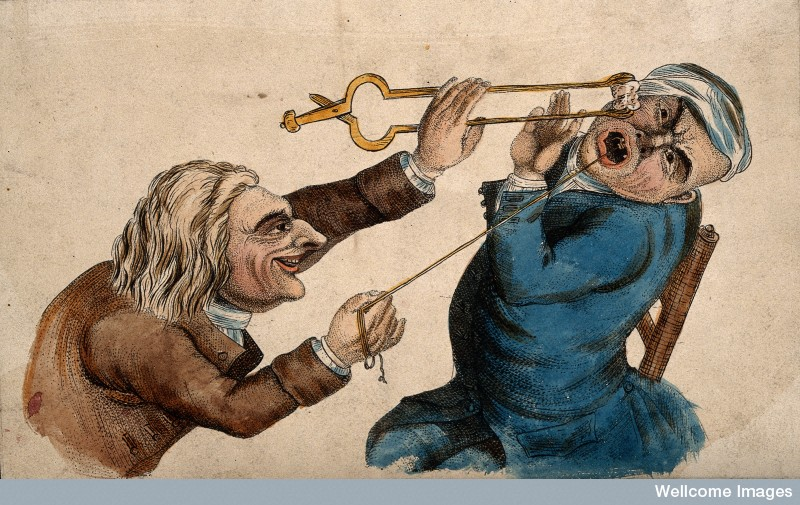 Shown courtesy of the Wellcome Institute