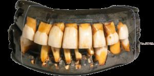 George Washington's dentures, courtesy of Mount Vernon
